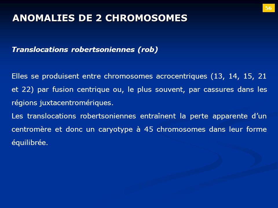 ANOMALIES DE 2 CHROMOSOMES