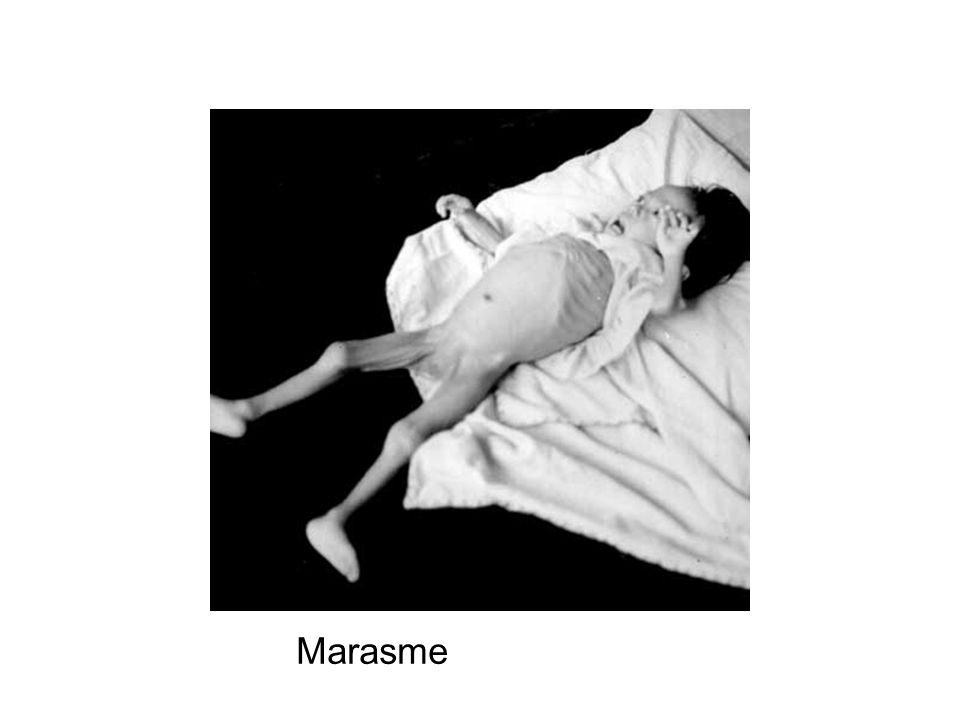 Marasme