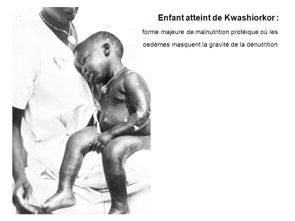 Enfant atteint de Kwashiorkor :