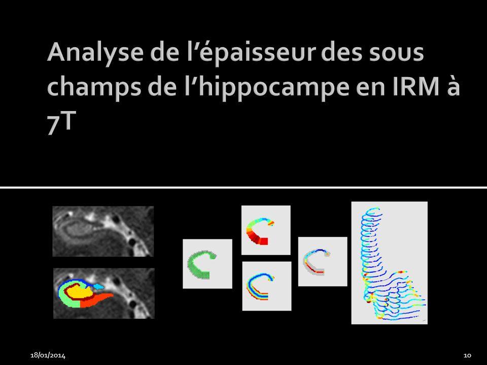 Analyse de l'épaisseur des sous champs de l'hippocampe en IRM à 7T