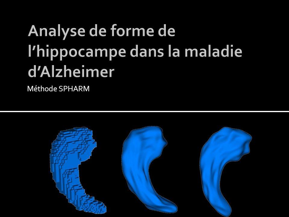 Analyse de forme de l'hippocampe dans la maladie d'Alzheimer