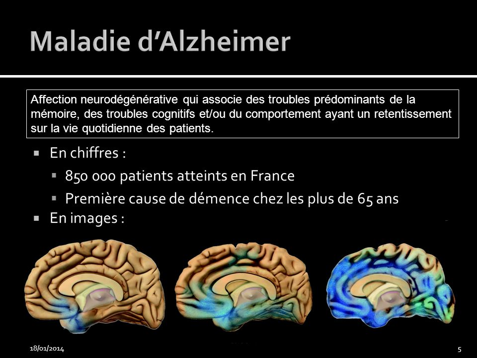 Maladie d'Alzheimer En chiffres : 850 000 patients atteints en France