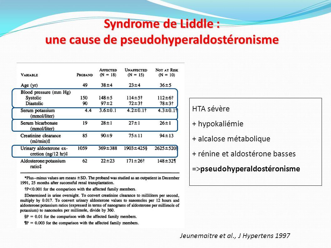 Syndrome de Liddle : une cause de pseudohyperaldostéronisme