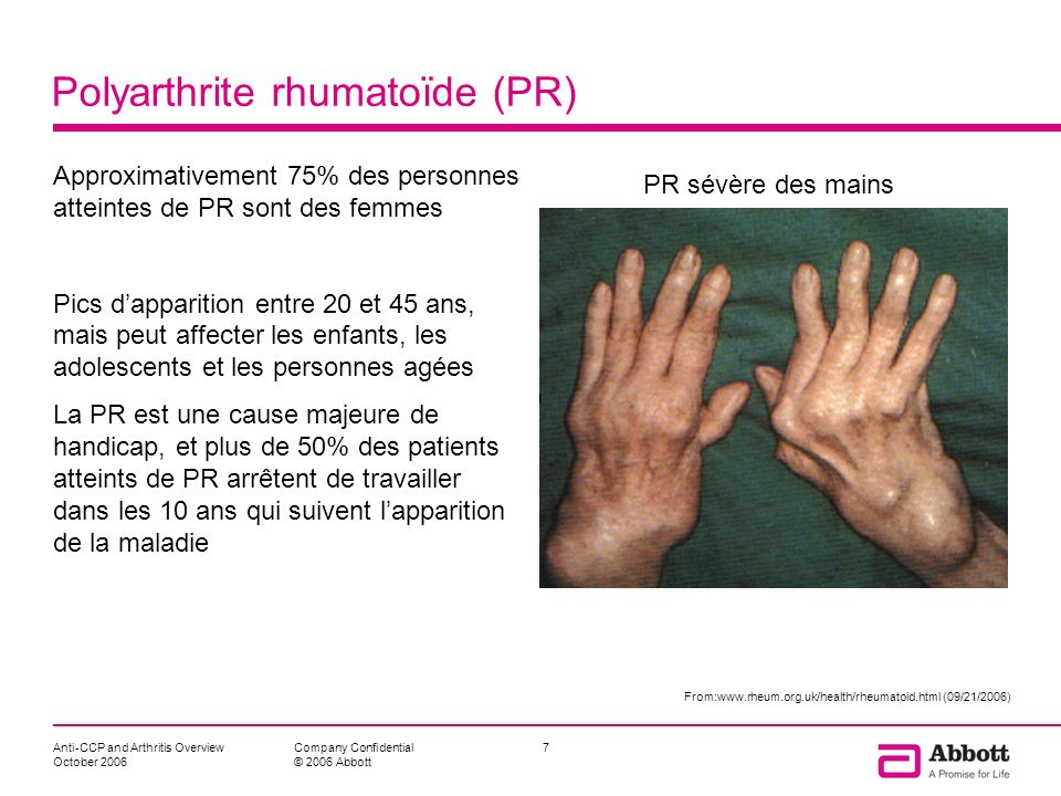 Polyarthrite rhumatoïde (PR)