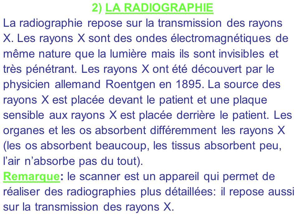 2) LA RADIOGRAPHIE La radiographie repose sur la transmission des rayons. X. Les rayons X sont des ondes électromagnétiques de.
