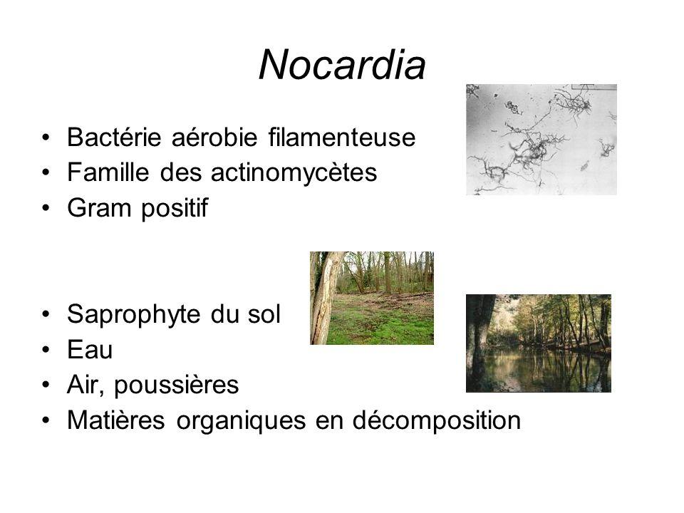 Nocardia Bactérie aérobie filamenteuse Famille des actinomycètes