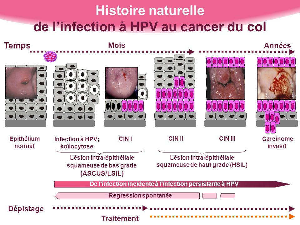 Histoire naturelle de l'infection à HPV au cancer du col