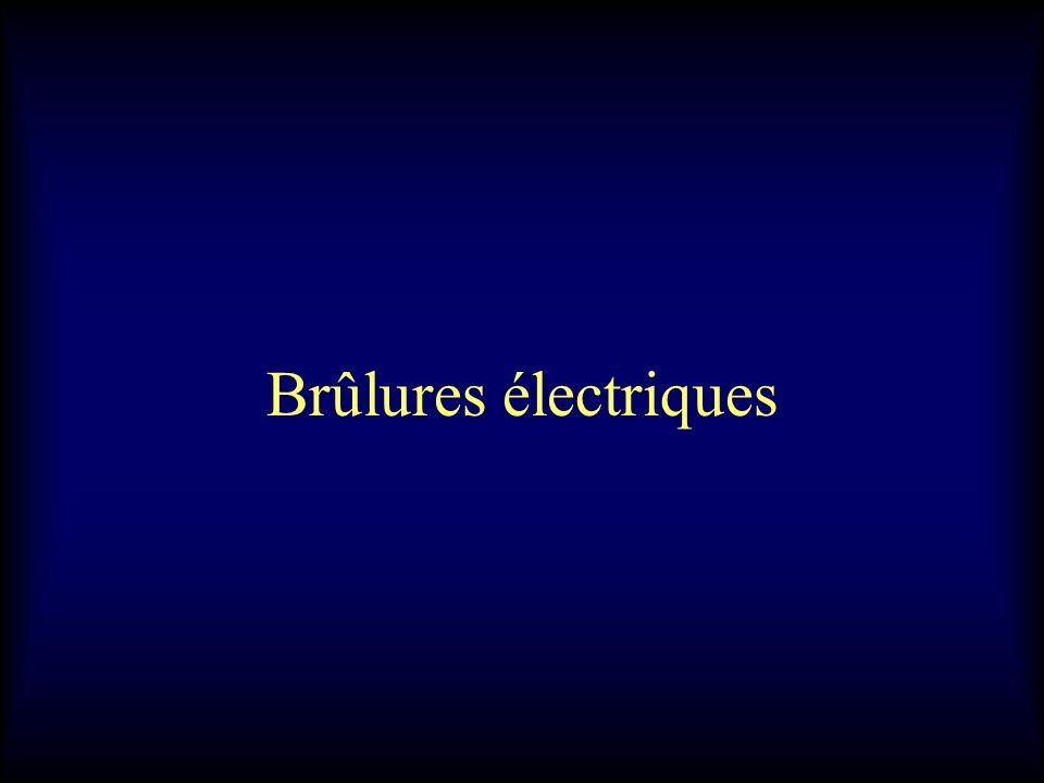 Brûlures électriques