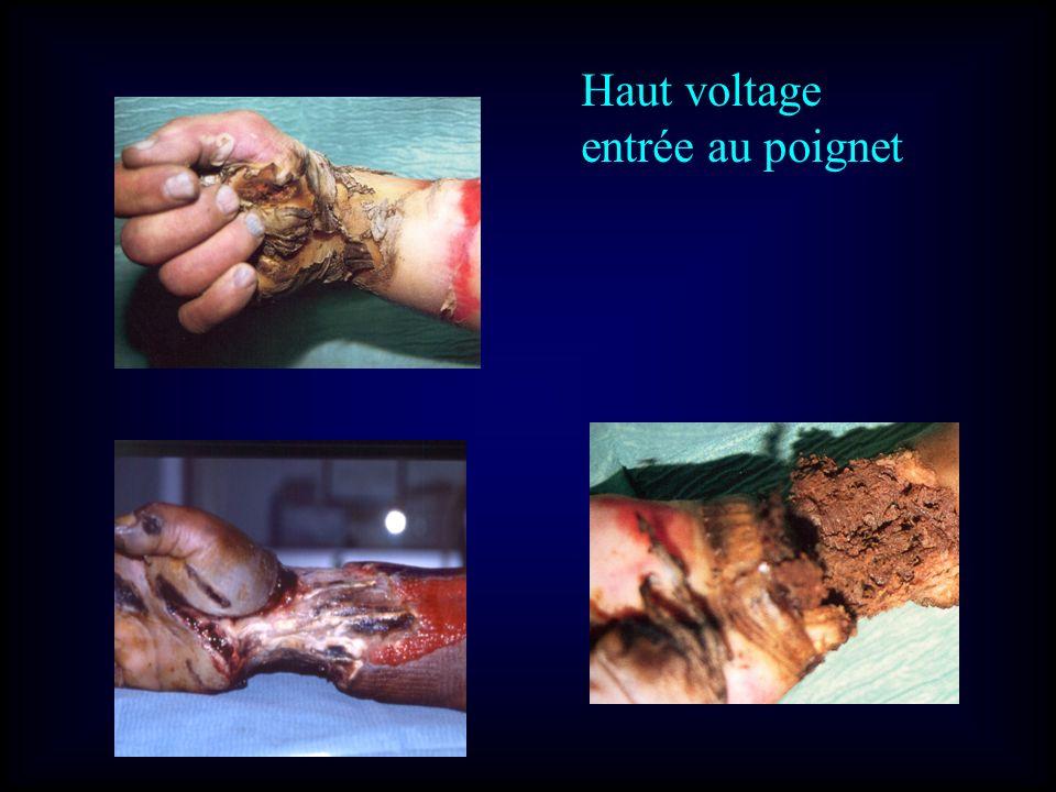 Haut voltage entrée au poignet