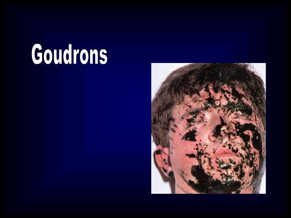 Goudrons