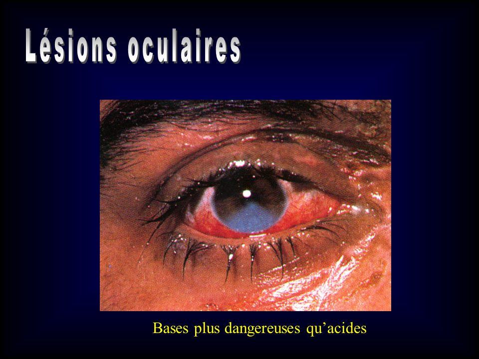 Lésions oculaires Bases plus dangereuses qu'acides