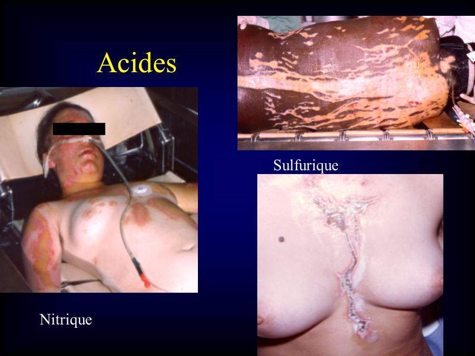 Acides Sulfurique Nitrique