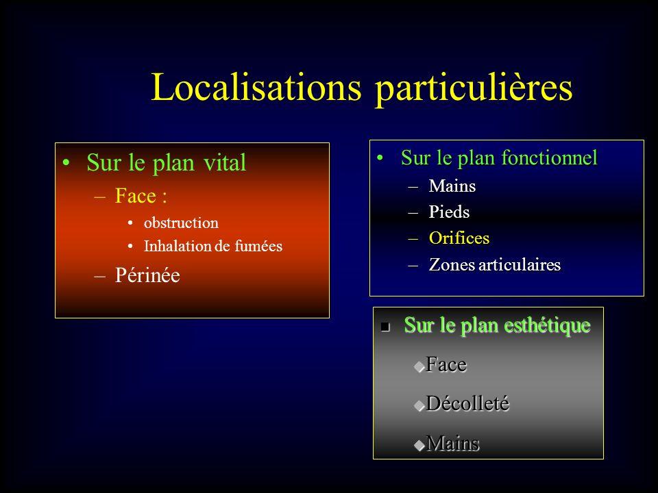 Localisations particulières