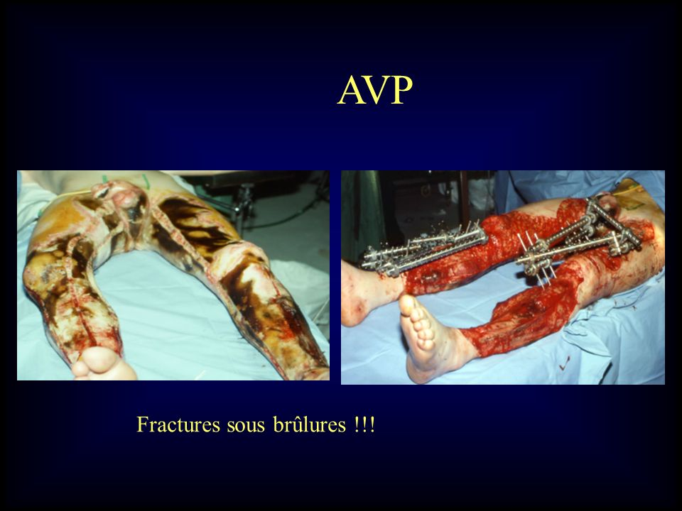 AVP Fractures sous brûlures !!!