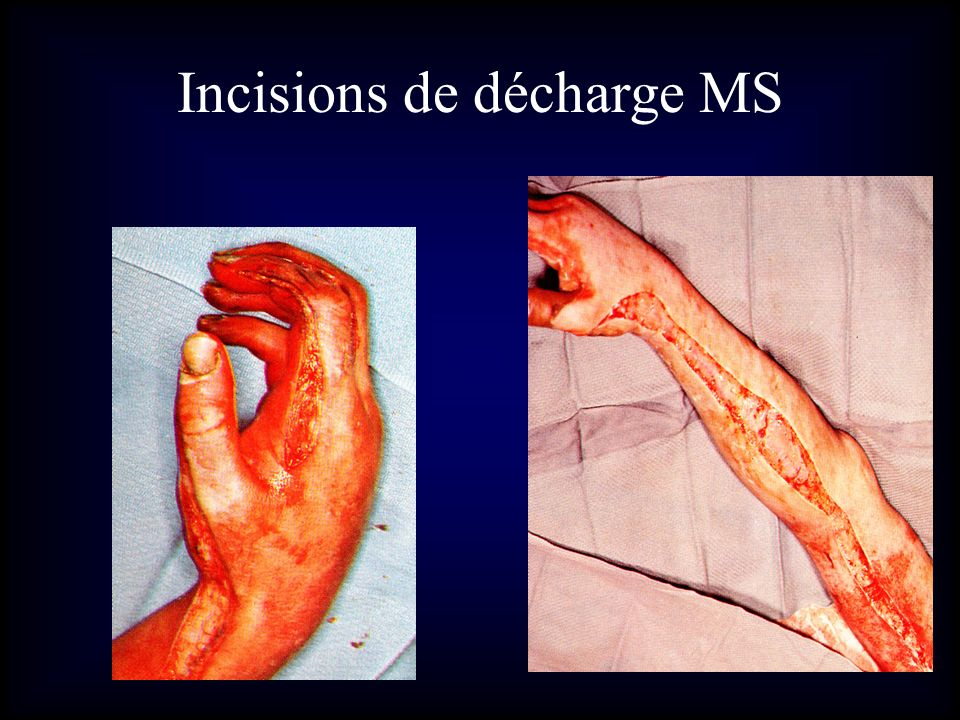 Incisions de décharge MS