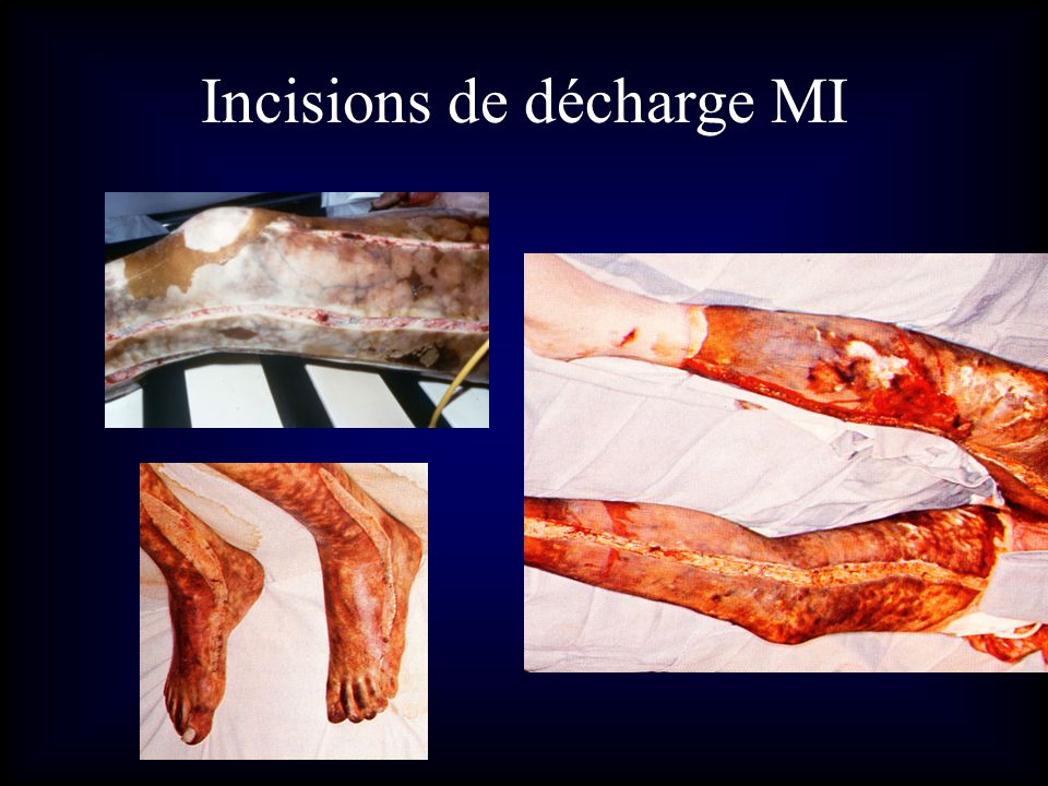 Incisions de décharge MI