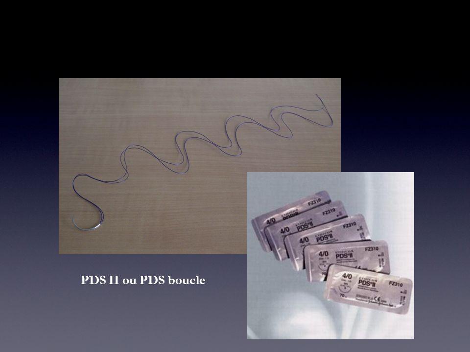 PDS II ou PDS boucle