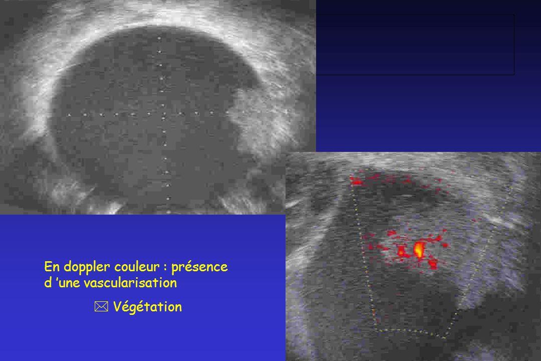 En doppler couleur : présence d 'une vascularisation