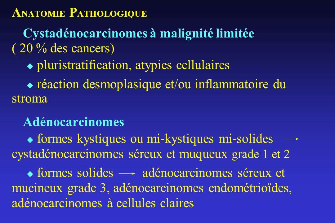 ANATOMIE PATHOLOGIQUE Cystadénocarcinomes à malignité limitée