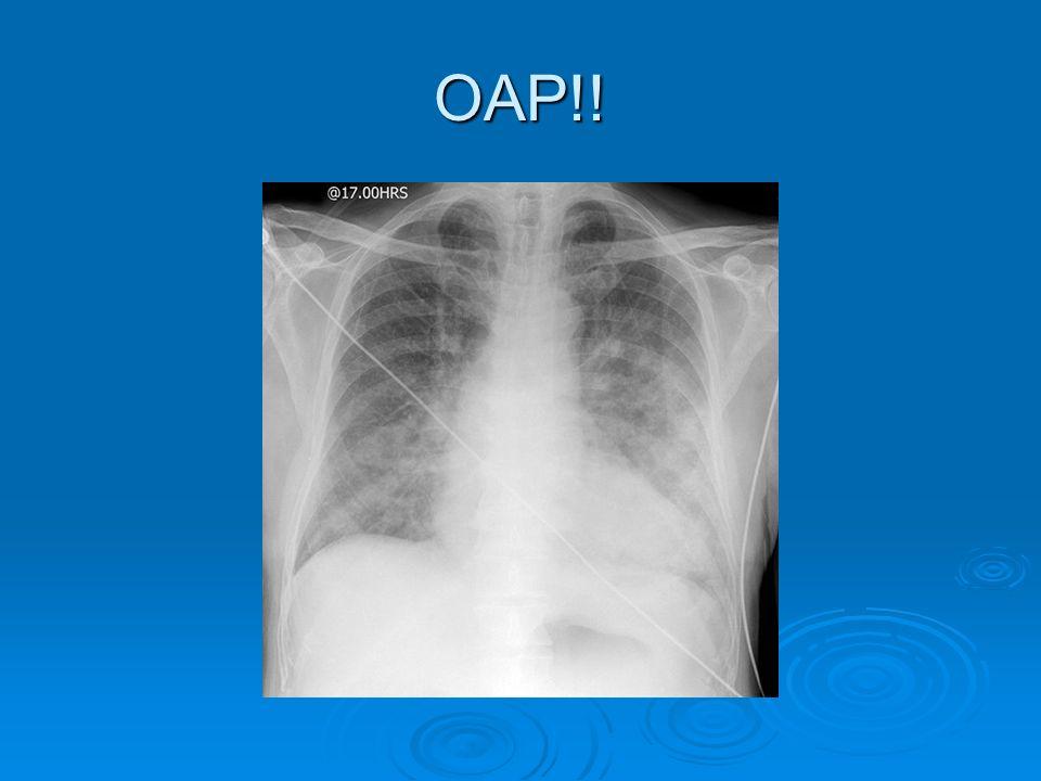 OAP!!