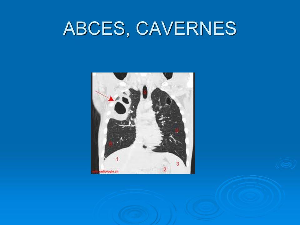 ABCES, CAVERNES