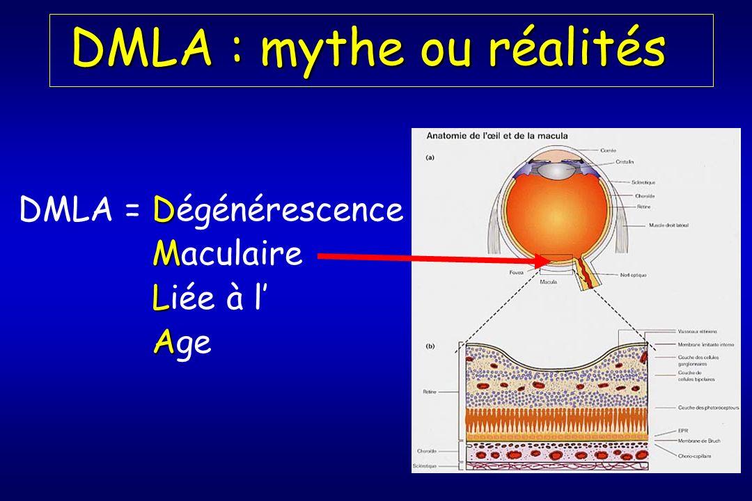 DMLA : mythe ou réalités
