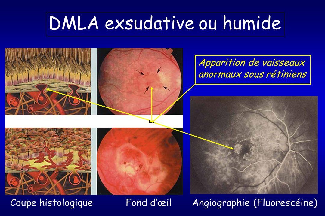 DMLA exsudative ou humide