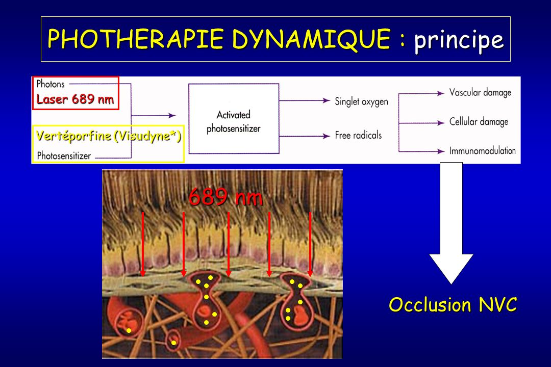 PHOTHERAPIE DYNAMIQUE : principe