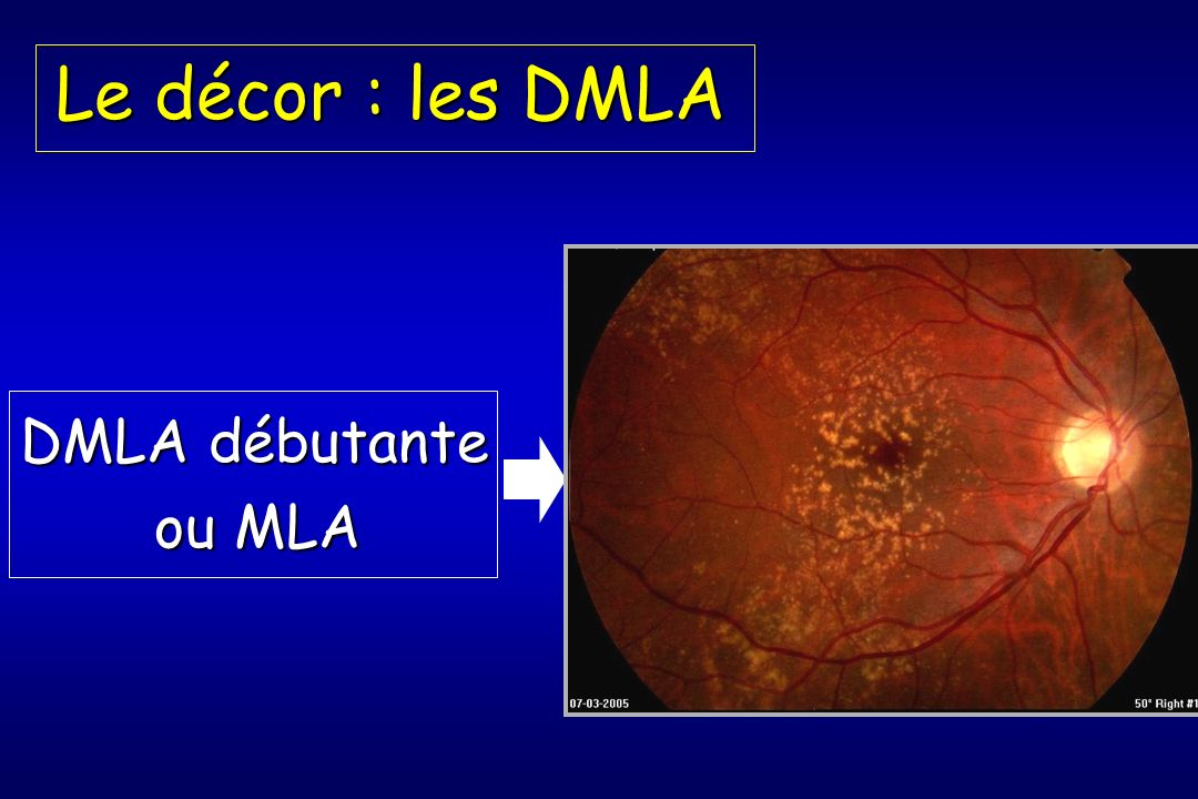 Le décor : les DMLA DMLA débutante ou MLA