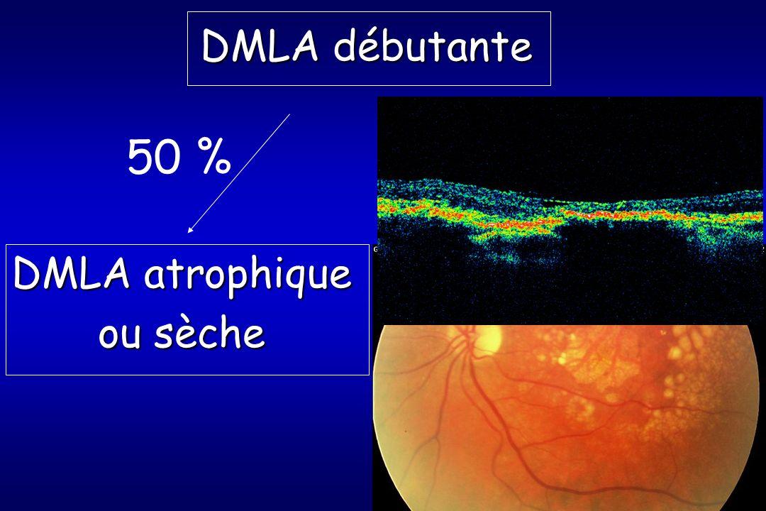 DMLA débutante 50 % DMLA atrophique ou sèche