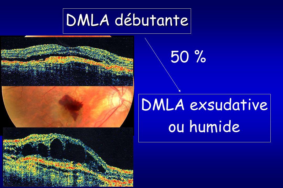 DMLA débutante 50 % DMLA exsudative ou humide