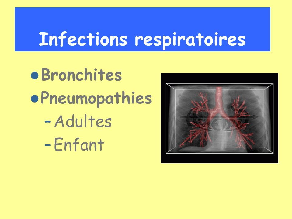 Infections respiratoires