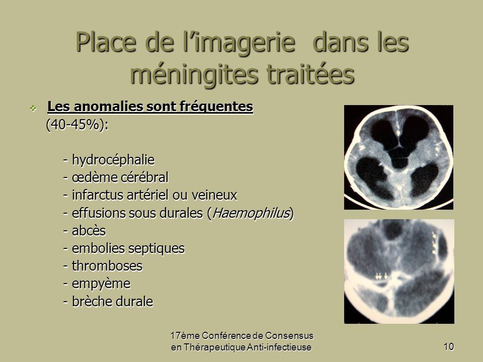 Place de l'imagerie dans les méningites traitées