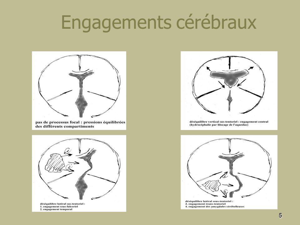 Engagements cérébraux