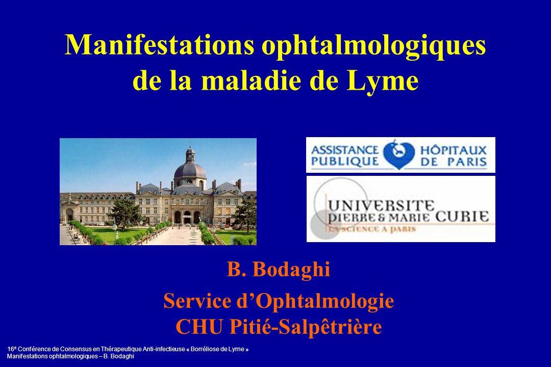 Manifestations ophtalmologiques de la maladie de Lyme