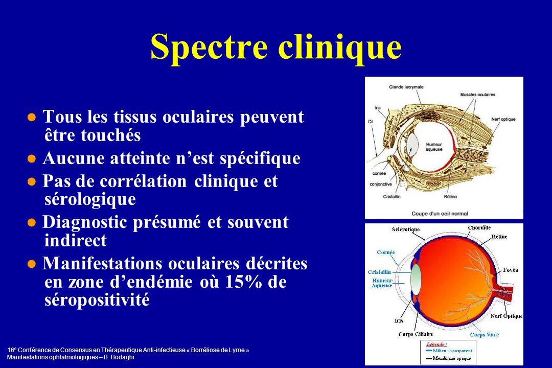 Spectre clinique ● Tous les tissus oculaires peuvent être touchés