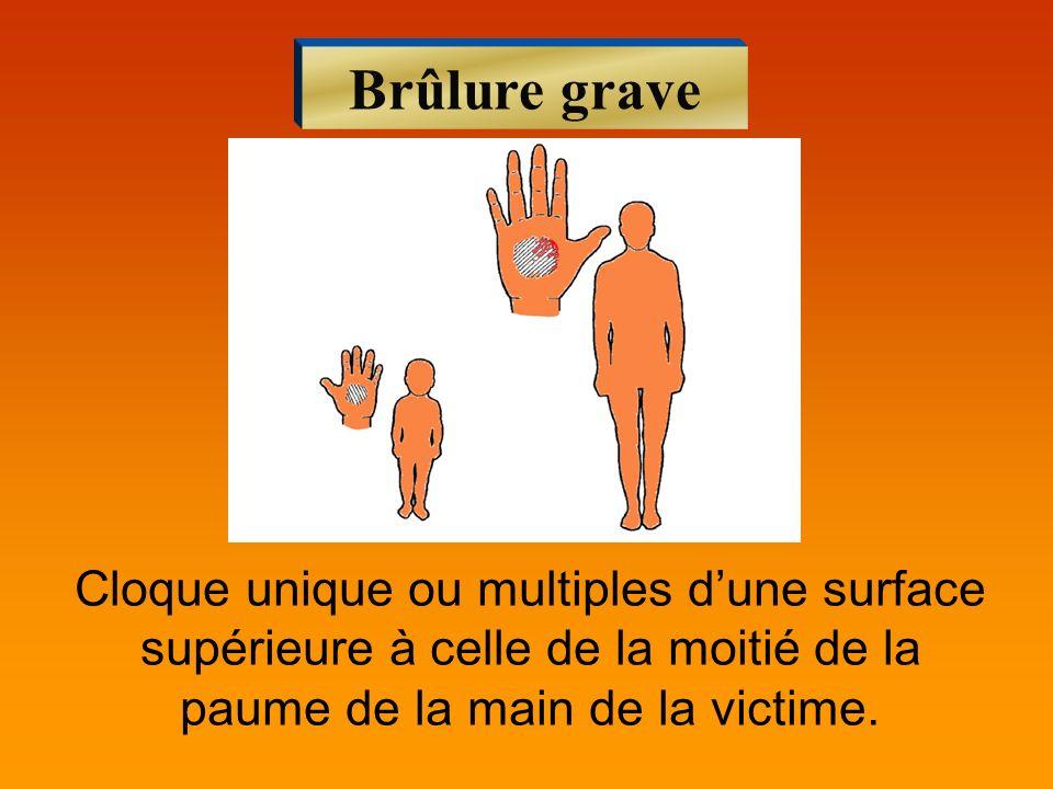 Brûlure graveCloque unique ou multiples d'une surface supérieure à celle de la moitié de la paume de la main de la victime.