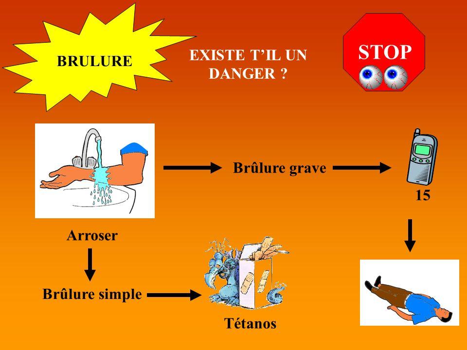 STOP EXISTE T'IL UN DANGER BRULURE Brûlure grave 15 Arroser