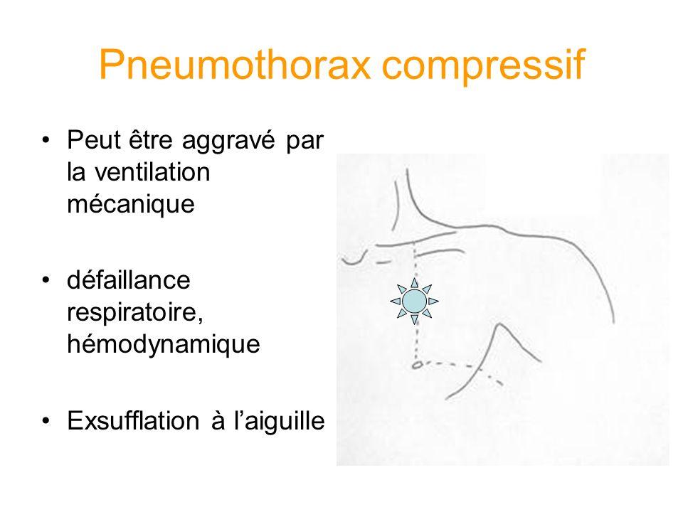 Pneumothorax compressif