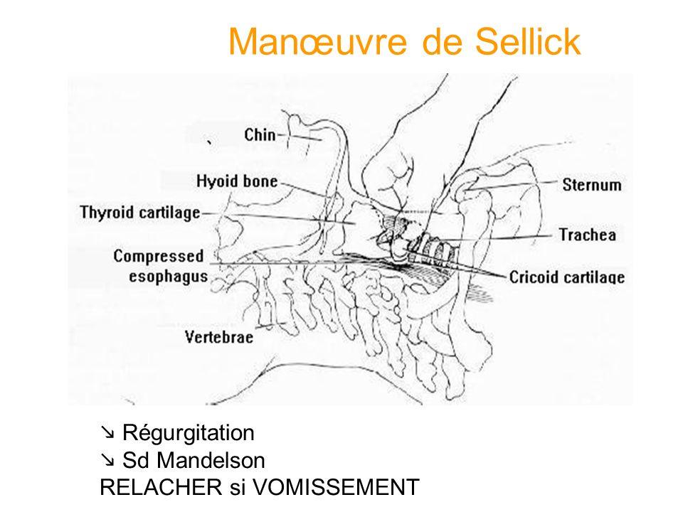 Manœuvre de Sellick Régurgitation Sd Mandelson RELACHER si VOMISSEMENT