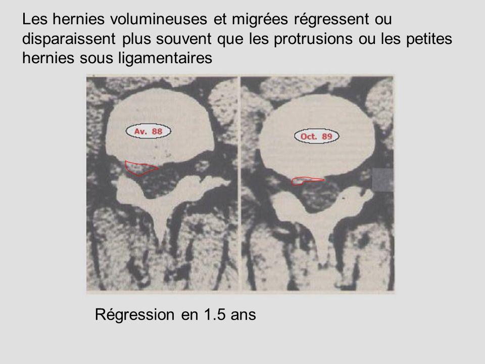 Les hernies volumineuses et migrées régressent ou disparaissent plus souvent que les protrusions ou les petites hernies sous ligamentaires
