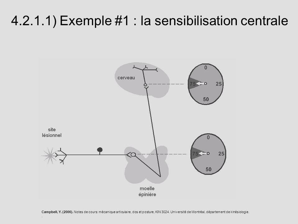 4.2.1.1) Exemple #1 : la sensibilisation centrale