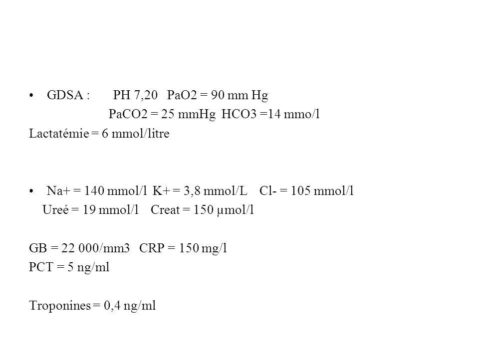 GDSA : PH 7,20 PaO2 = 90 mm Hg PaCO2 = 25 mmHg HCO3 =14 mmo/l. Lactatémie = 6 mmol/litre.