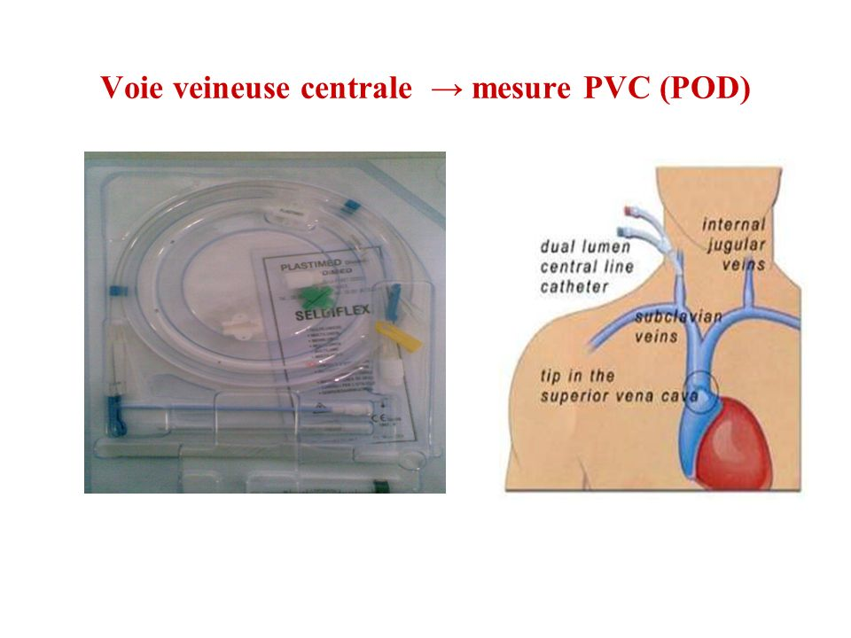 Voie veineuse centrale → mesure PVC (POD)