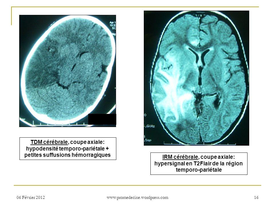 TDM cérébrale, coupe axiale: hypodensité temporo-pariétale + petites suffusions hémorragiques