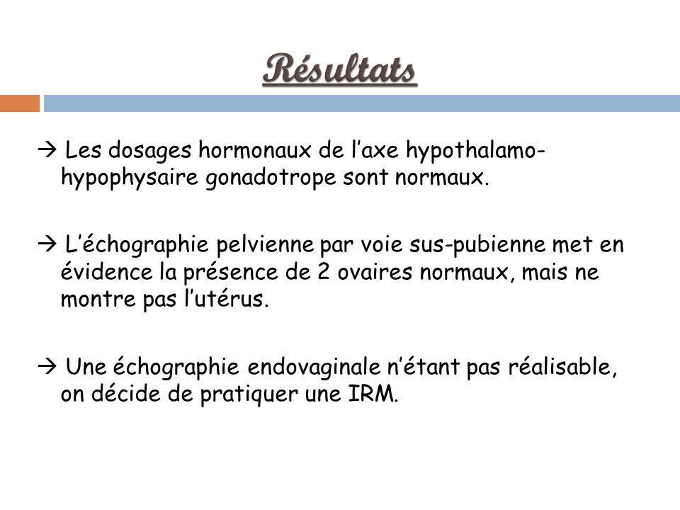 Résultats  Les dosages hormonaux de l'axe hypothalamo- hypophysaire gonadotrope sont normaux.