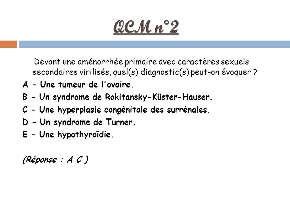 QCM n°2 Devant une aménorrhée primaire avec caractères sexuels secondaires virilisés, quel(s) diagnostic(s) peut-on évoquer