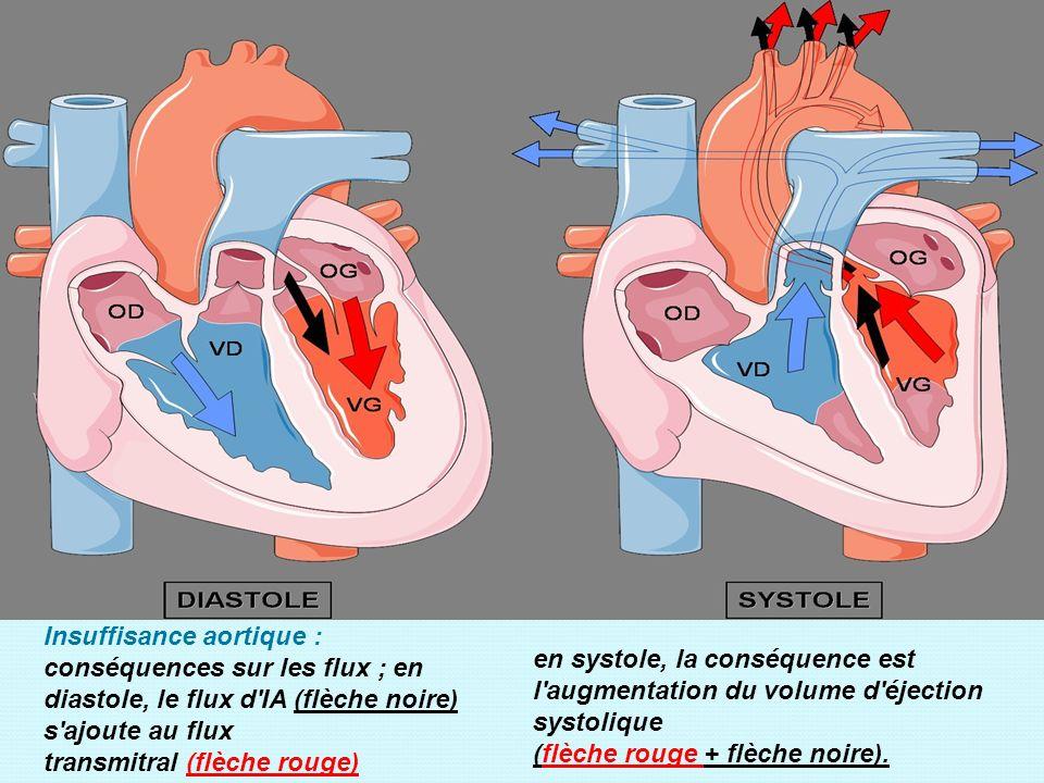 Insuffisance aortique : conséquences sur les flux ; en diastole, le flux d IA (flèche noire) s ajoute au flux