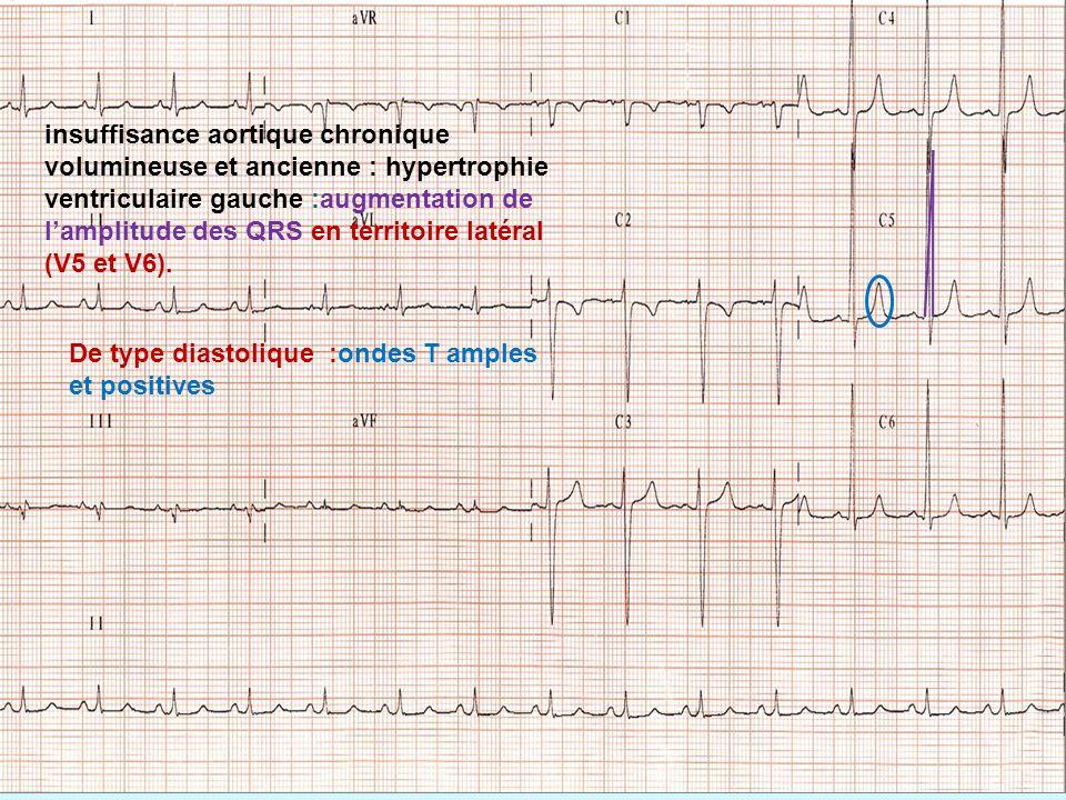 insuffisance aortique chronique volumineuse et ancienne : hypertrophie ventriculaire gauche :augmentation de l'amplitude des QRS en territoire latéral (V5 et V6).