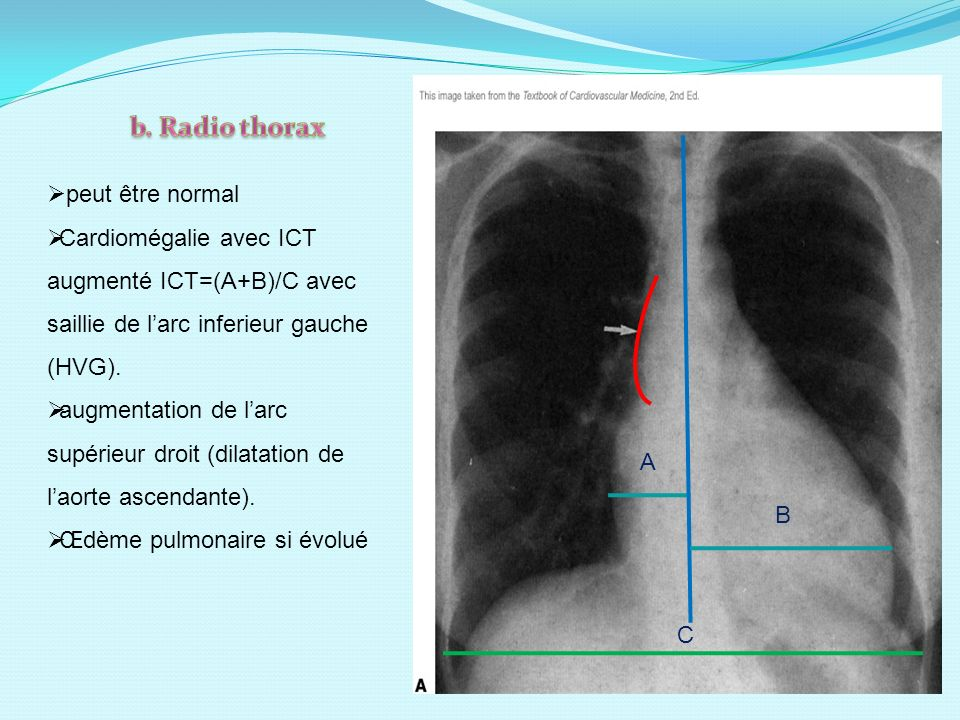 b. Radio thorax peut être normal